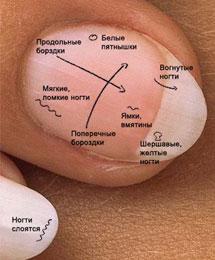 Как узнать по ногтям о состоянии здоровья?