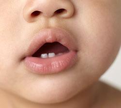 Что делать, когда режутся зубки?