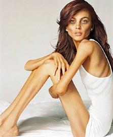 Что такое «анорексия»?