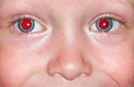 Как избежать «красных» глаз на фотографиях?
