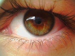 Что делать, если заноза попала в глаз?
