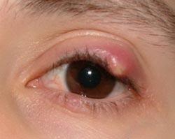 Как лечить ячмень на глазах?