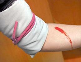 Что делать при кровотечении, переломе, ушибе?